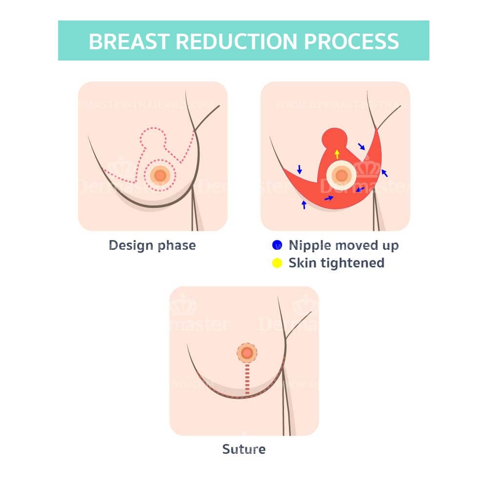 breast-reduction-en-02