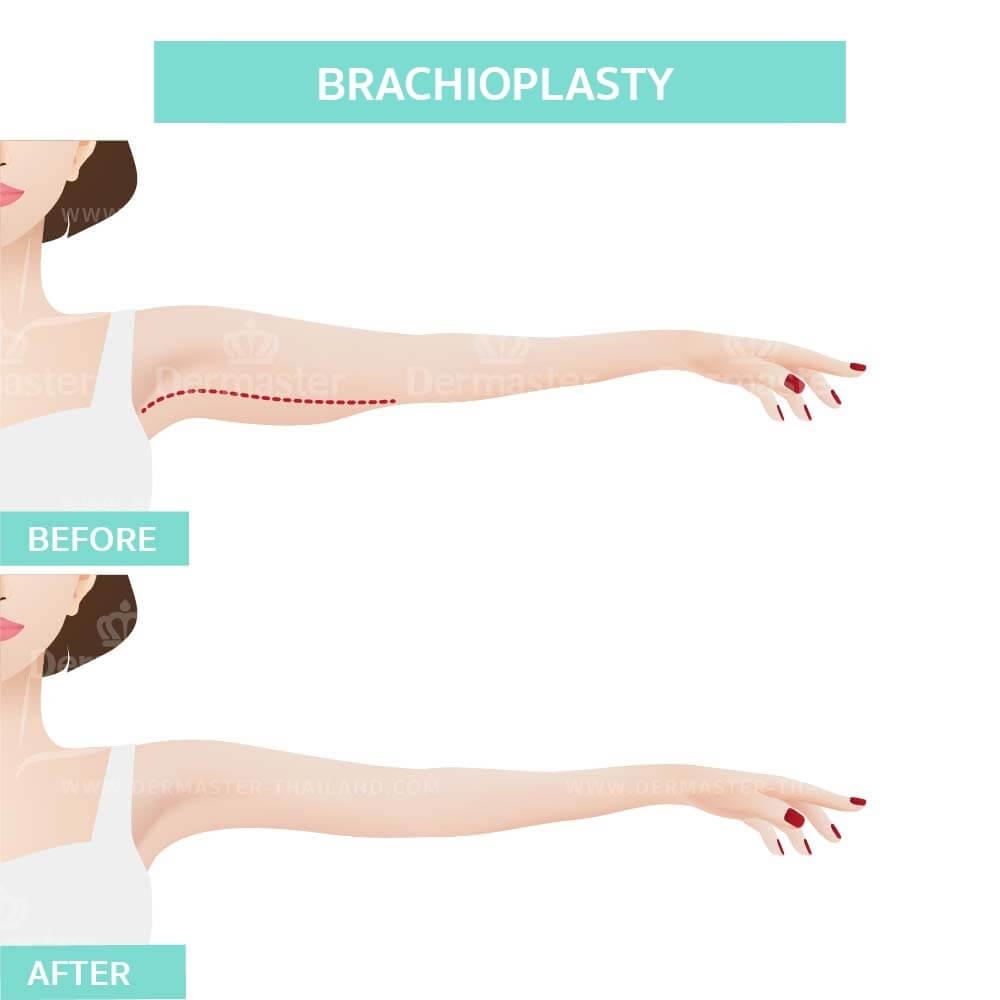 Brachioplasty 8