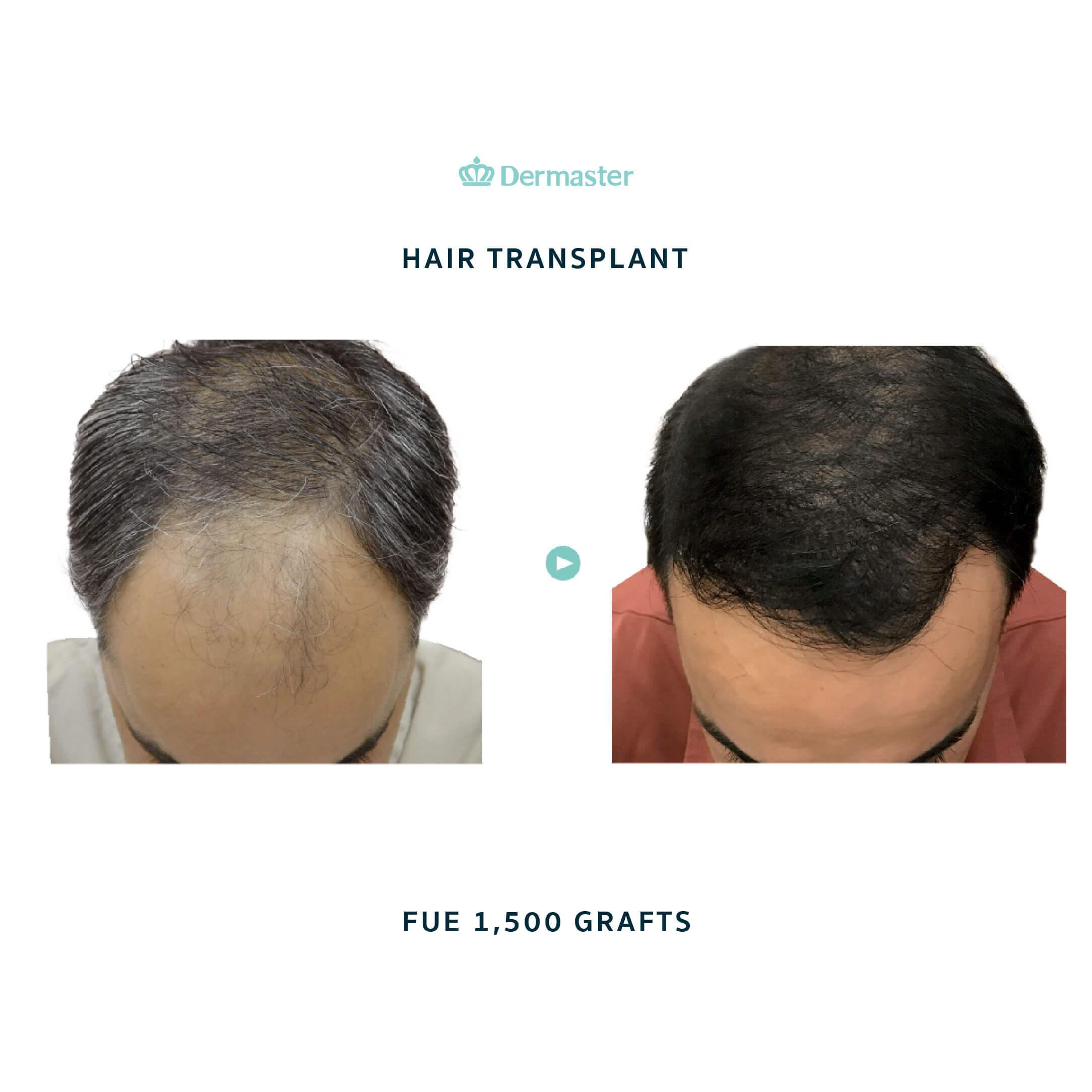 dermaster-before-hair-transplant-01