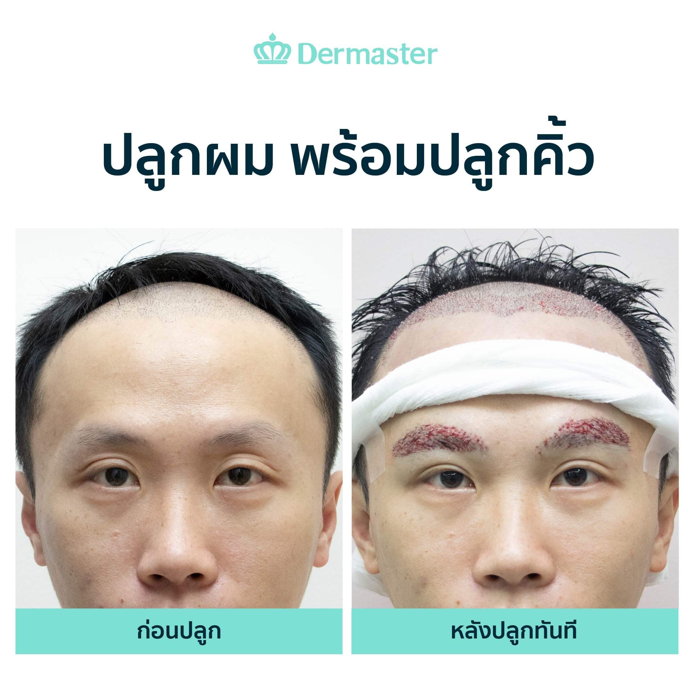dermaster-before-hair-transplant-03