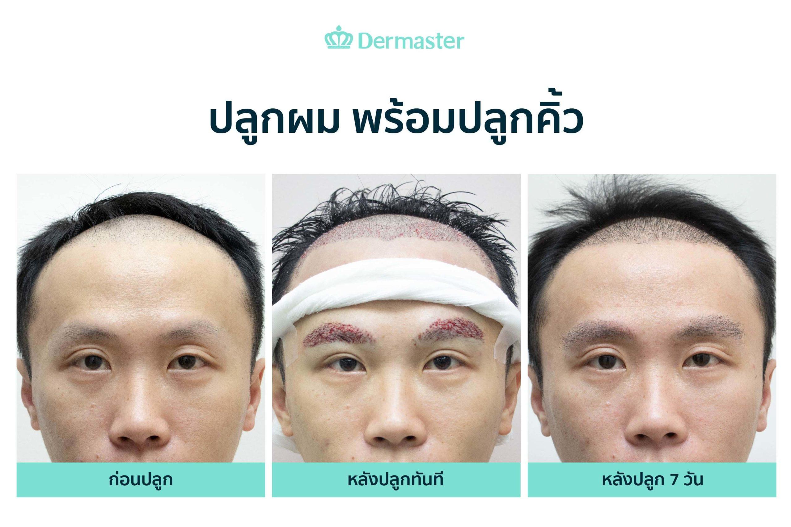 dermaster-before-hair-transplant-04