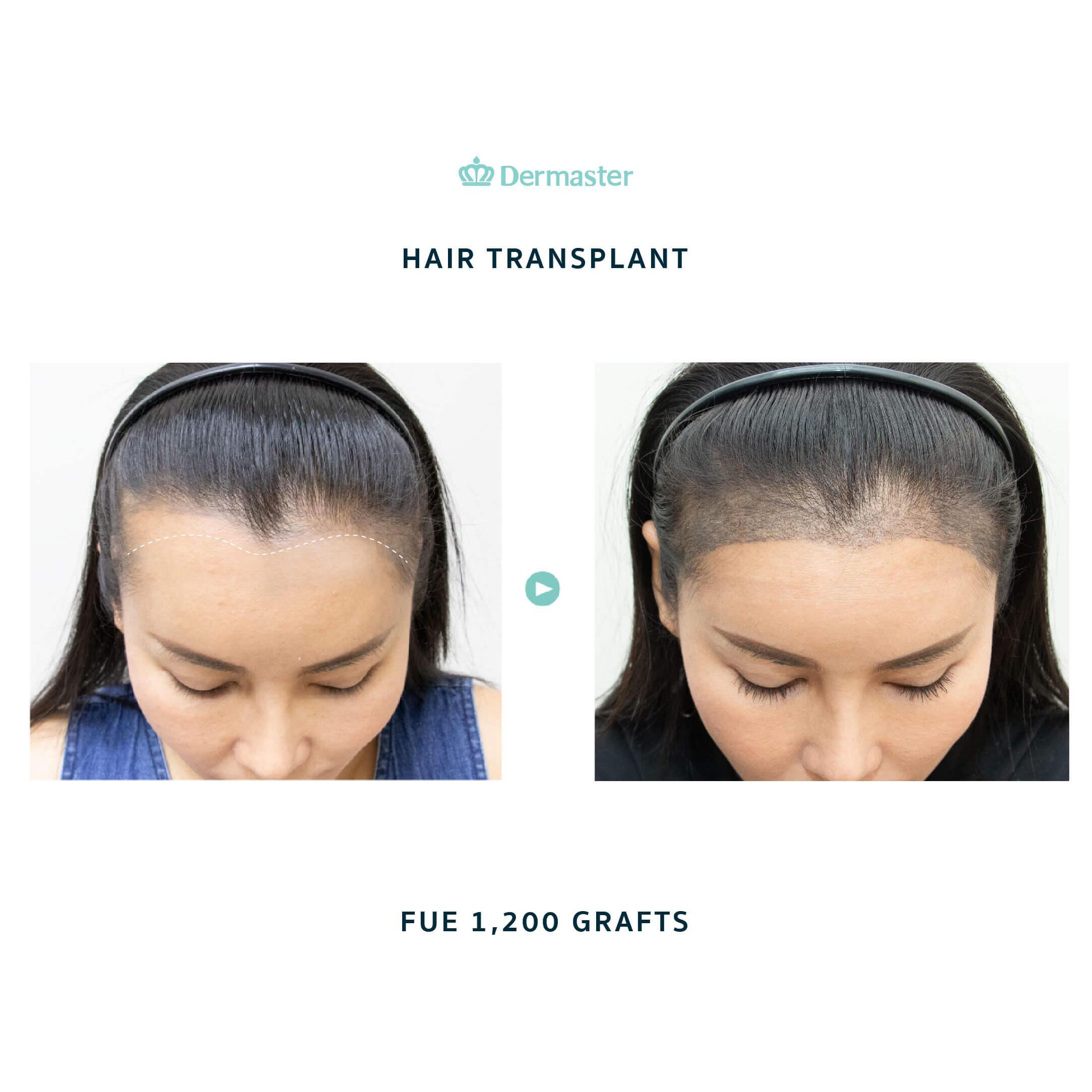 dermaster-before-hair-transplant