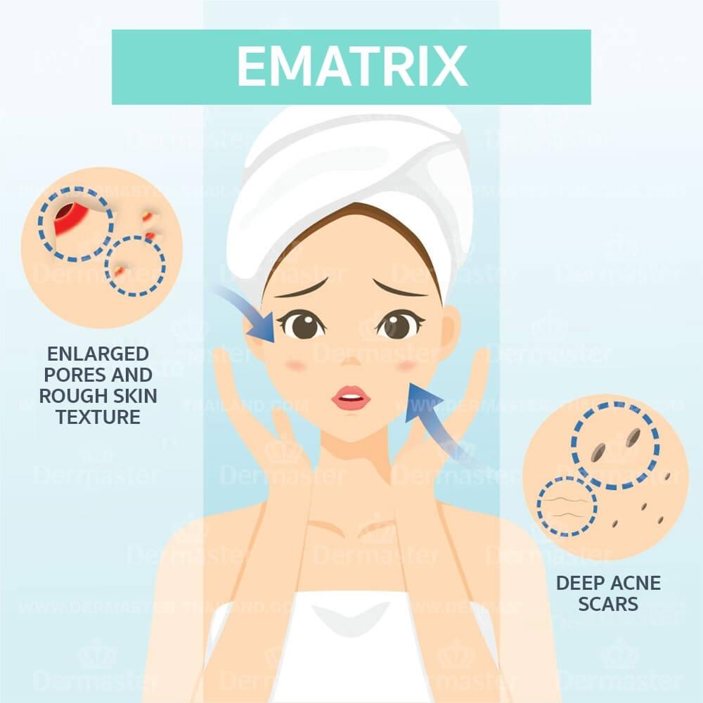 eMatrix 6