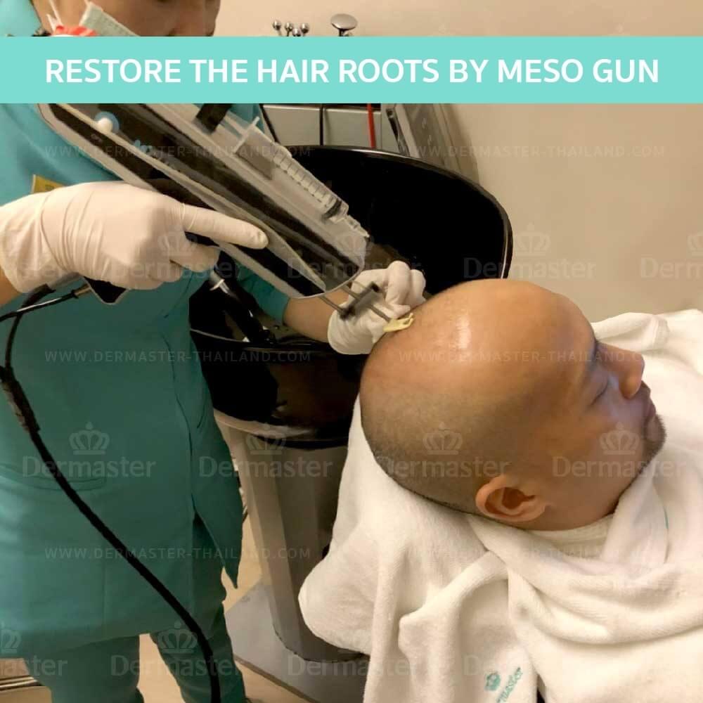 dermaster-hair-reform-en-02