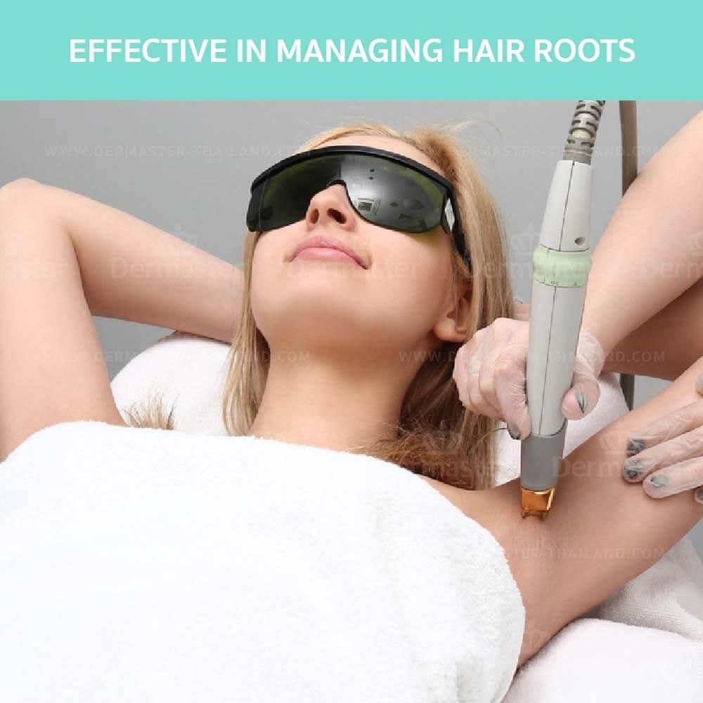 dermaster-hair-removal-yag-en-03
