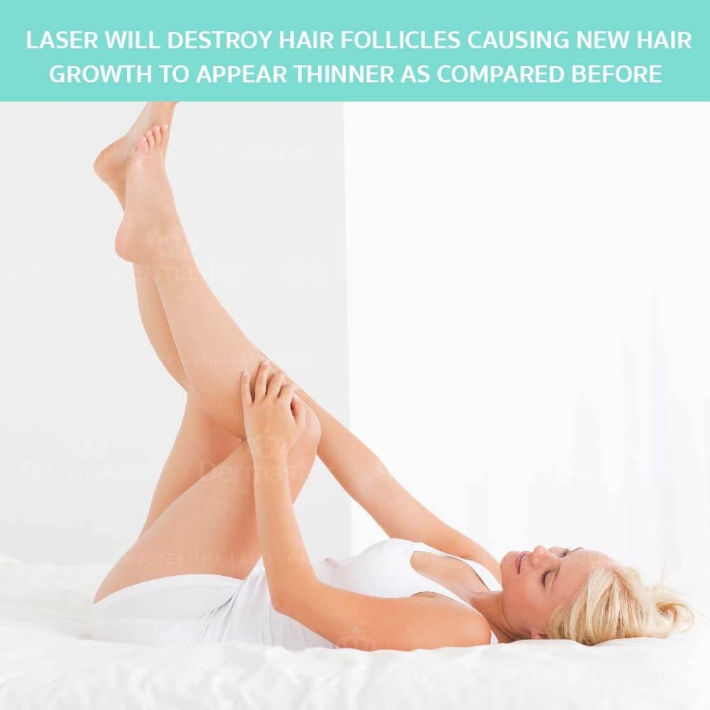 dermaster-hair-removal-yag-en-06