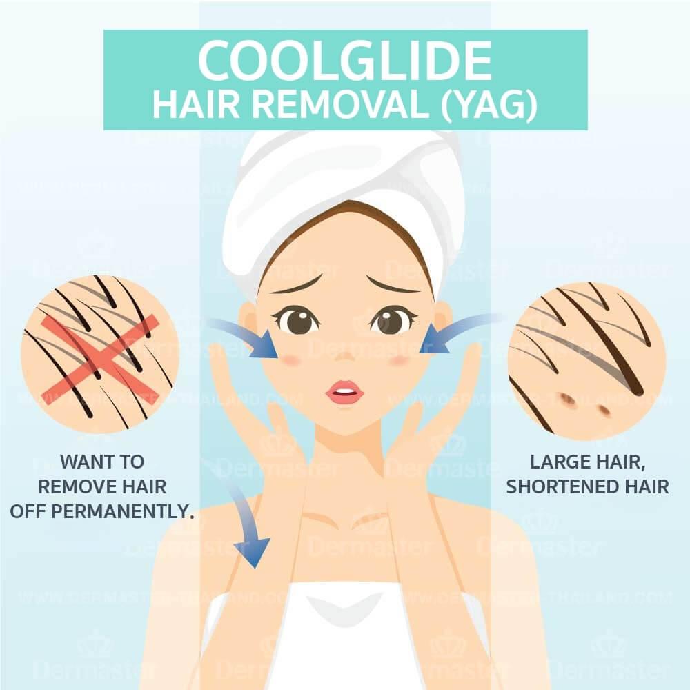dermaster-hair-removal-yag-en