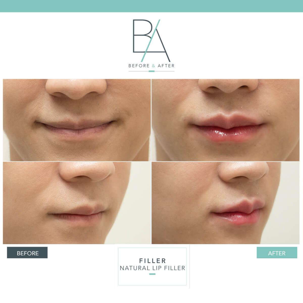 dermaster-lip-filler-01