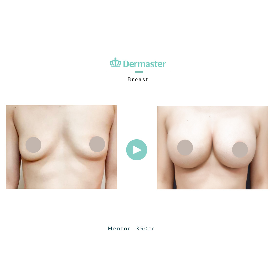 dermaster-mentor-breast-augmentation-review-03