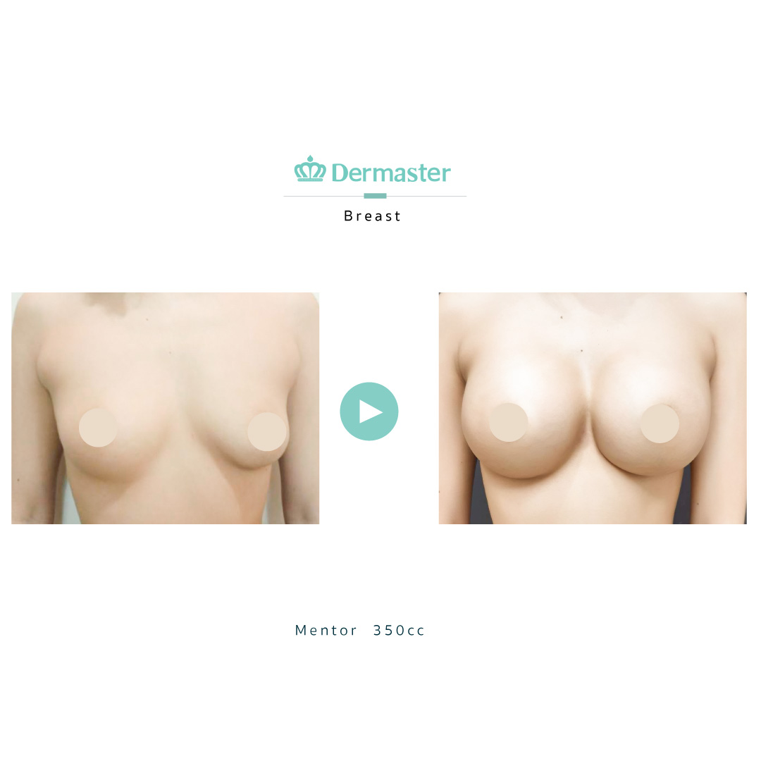 dermaster-mentor-breast-augmentation-review-04