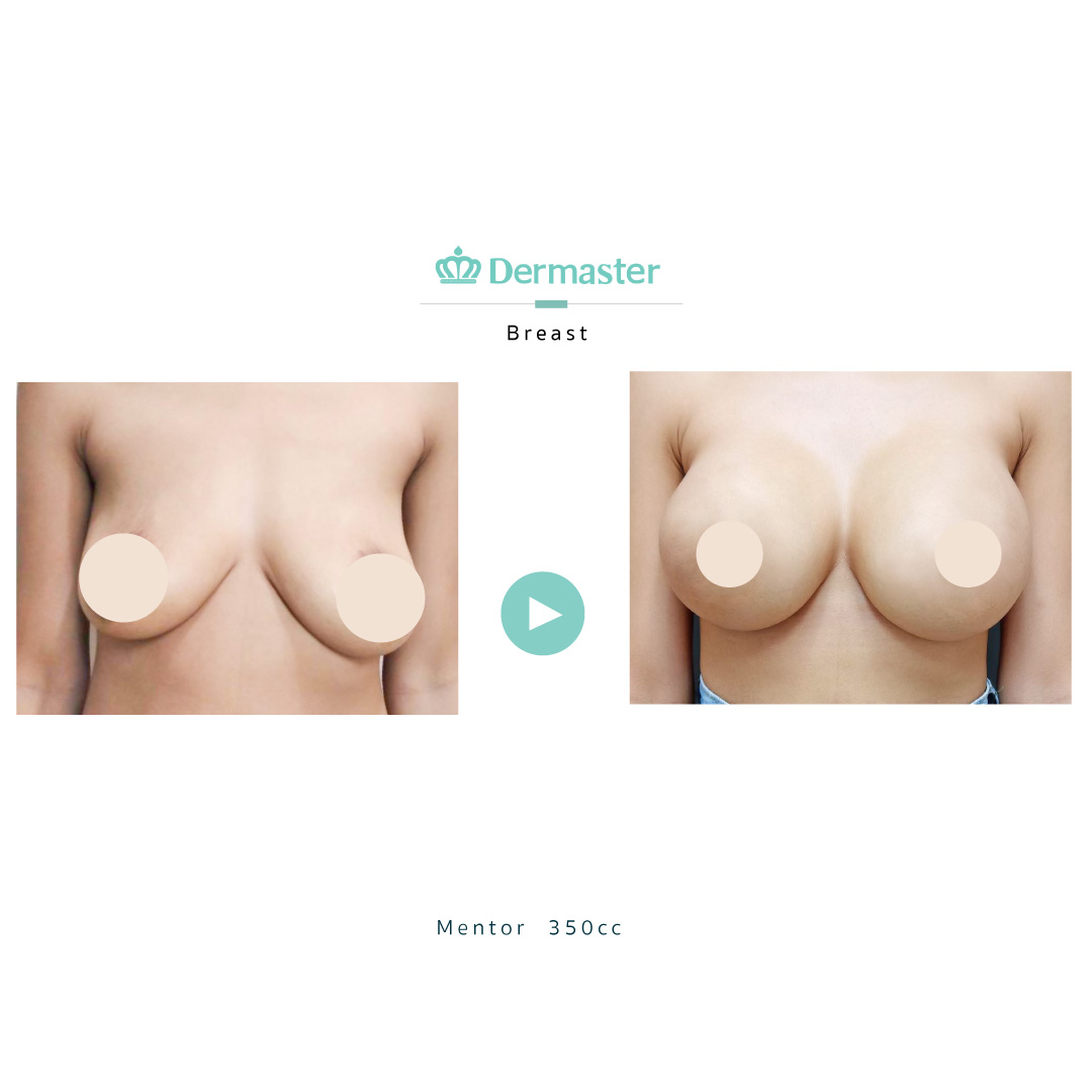 dermaster-mentor-breast-augmentation-review-05