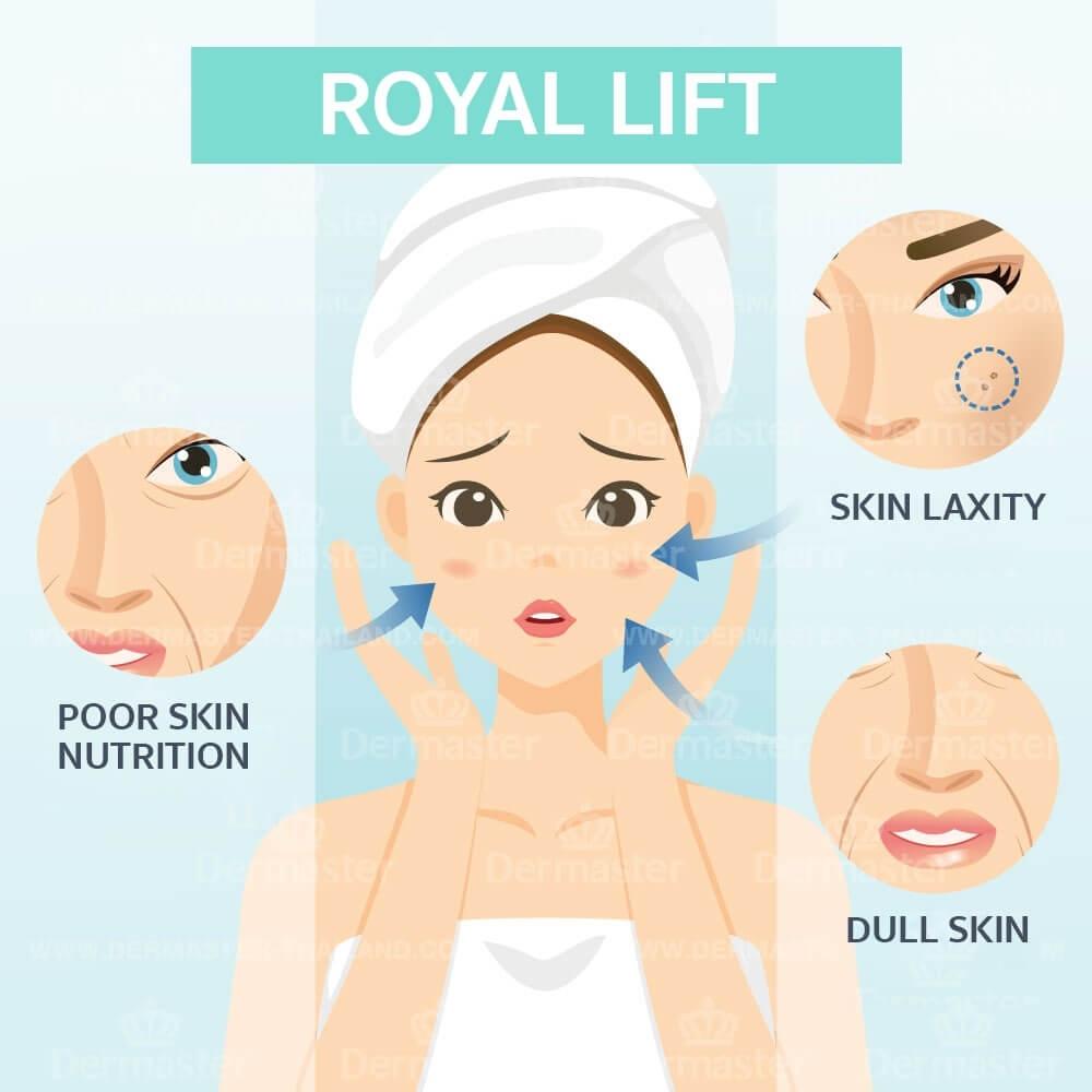 dermaster-royal-lift-en