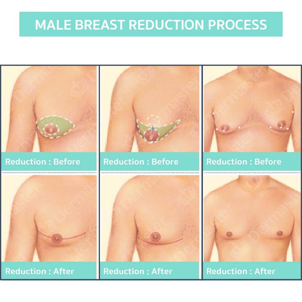 male-breast-reduction-en-02
