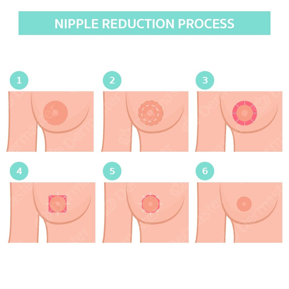 Nipple Reduction 7