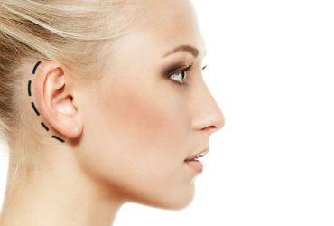 جراحة تجميل الأذن