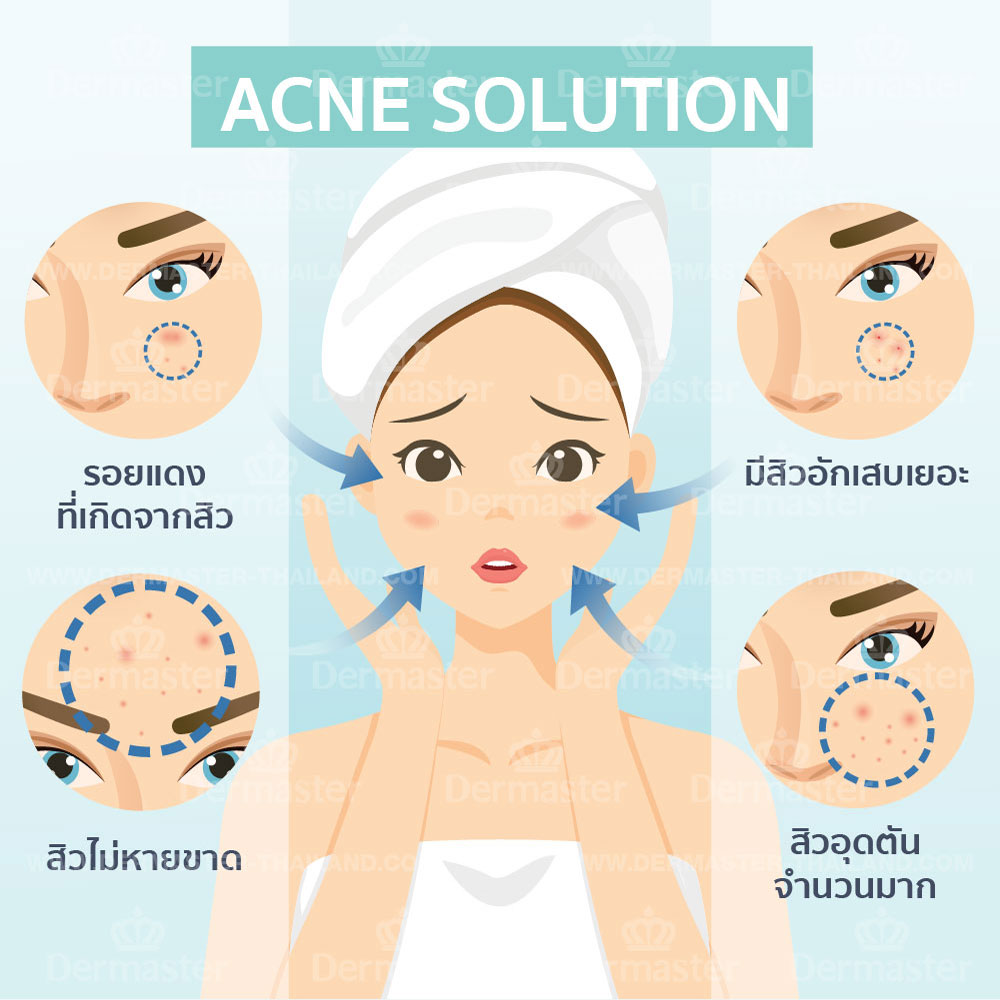 Acne Solution 6