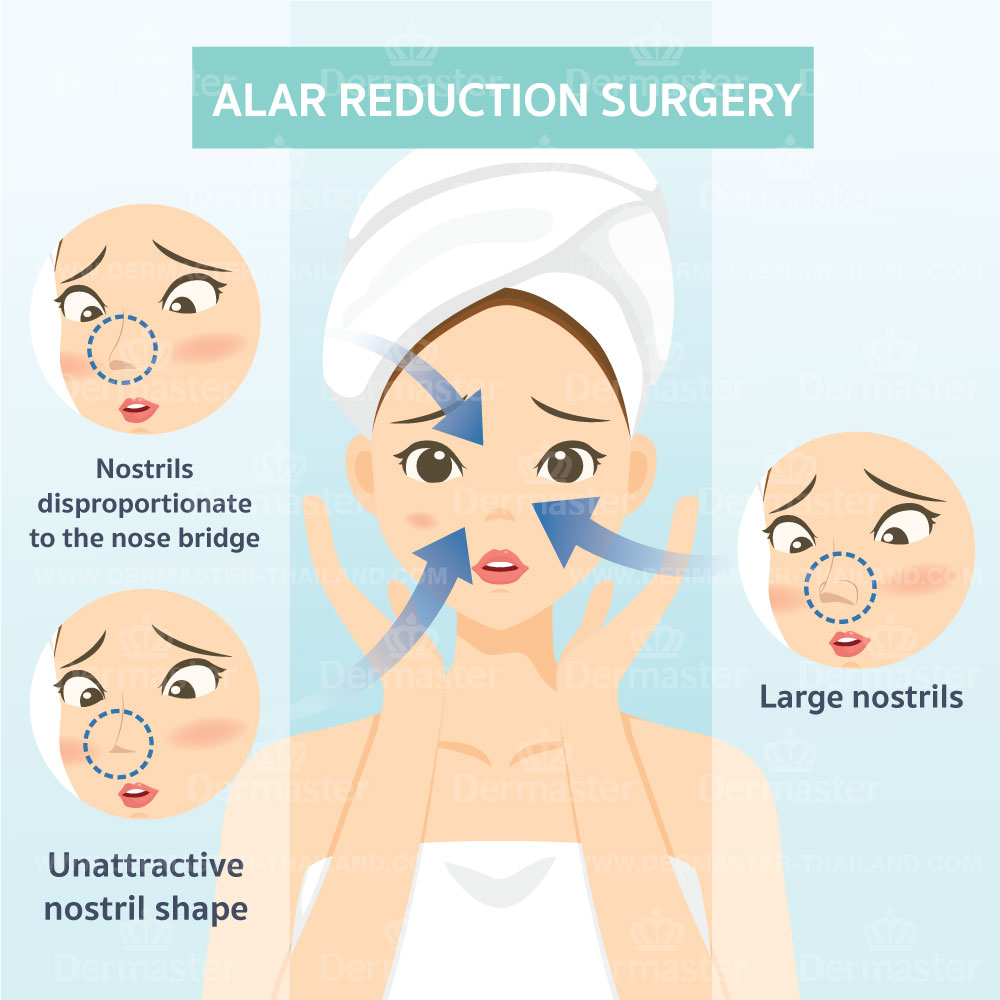 Alar Reduction Surgery 7