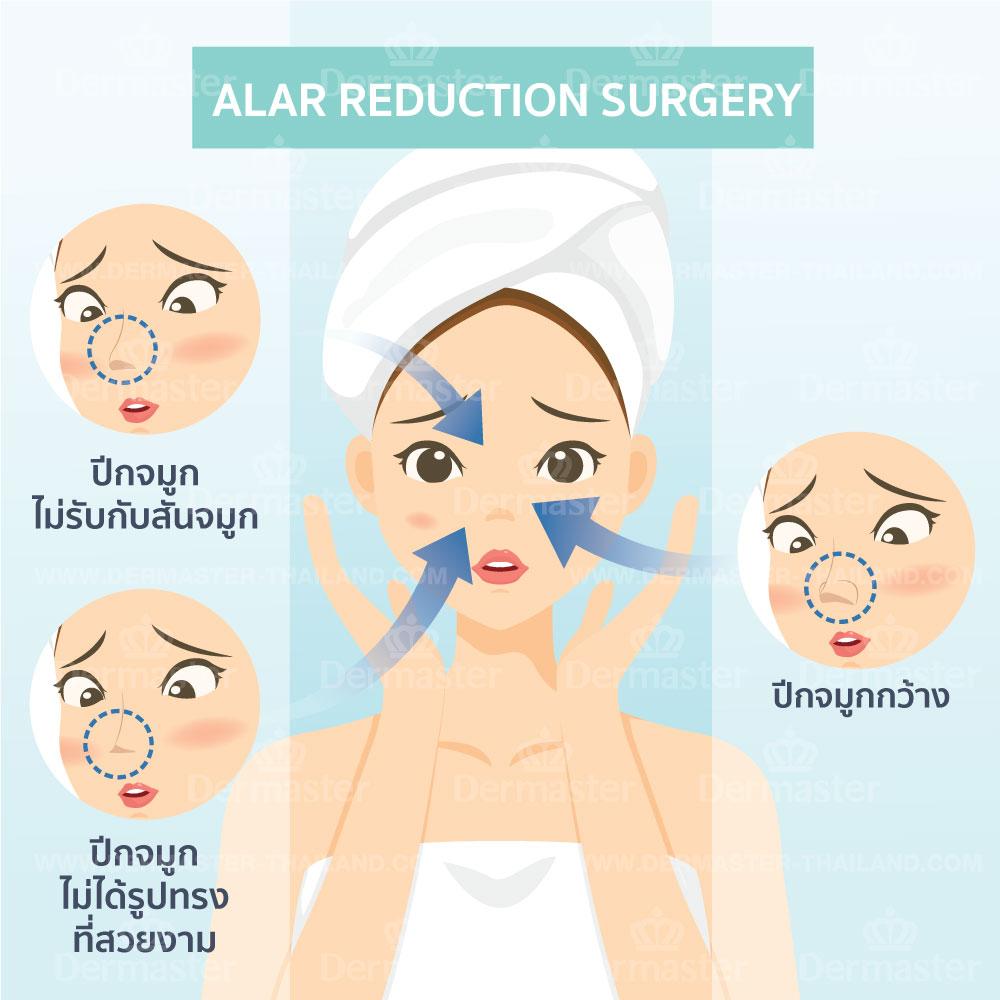 problem-alar-reduction-surgery