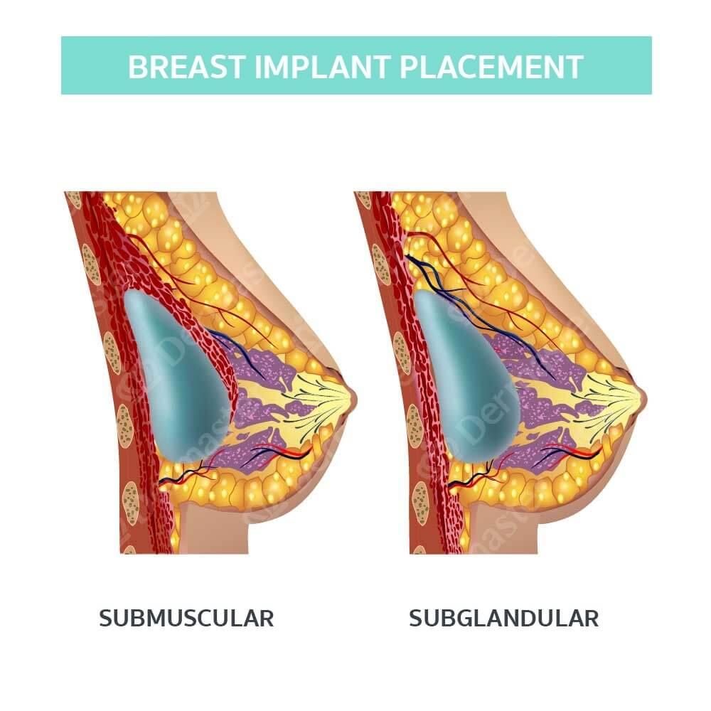 Breast Augmentation 9