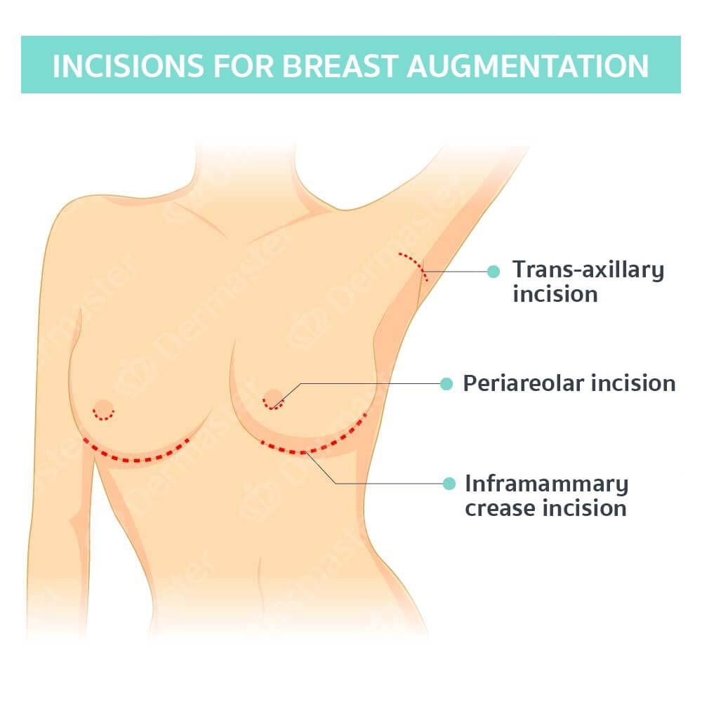problem-breast-augmentation-en-03