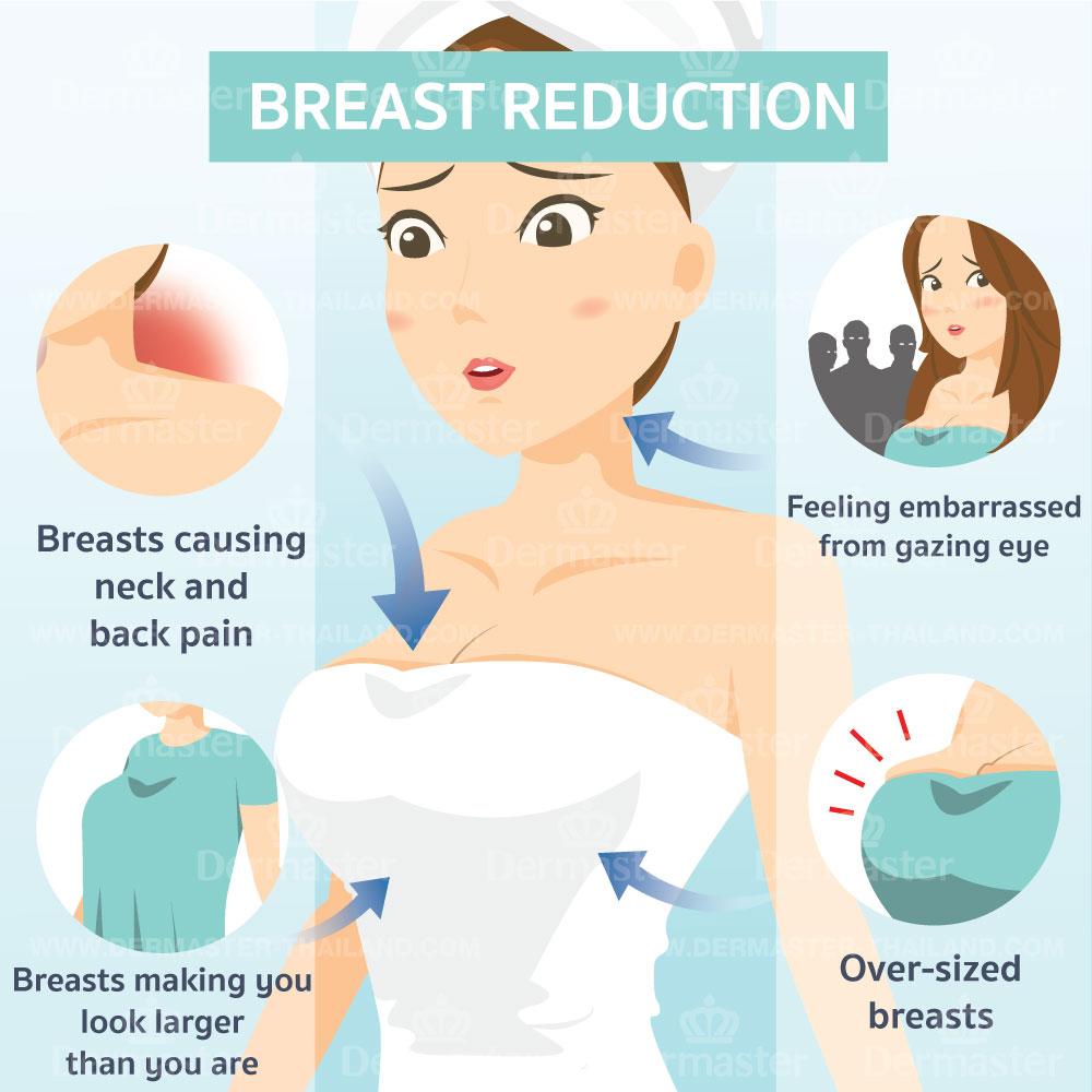 problem-breast-reduction-en