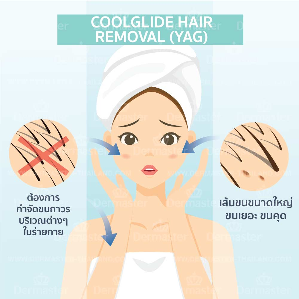 problem-coolglide-hair-removal-yag