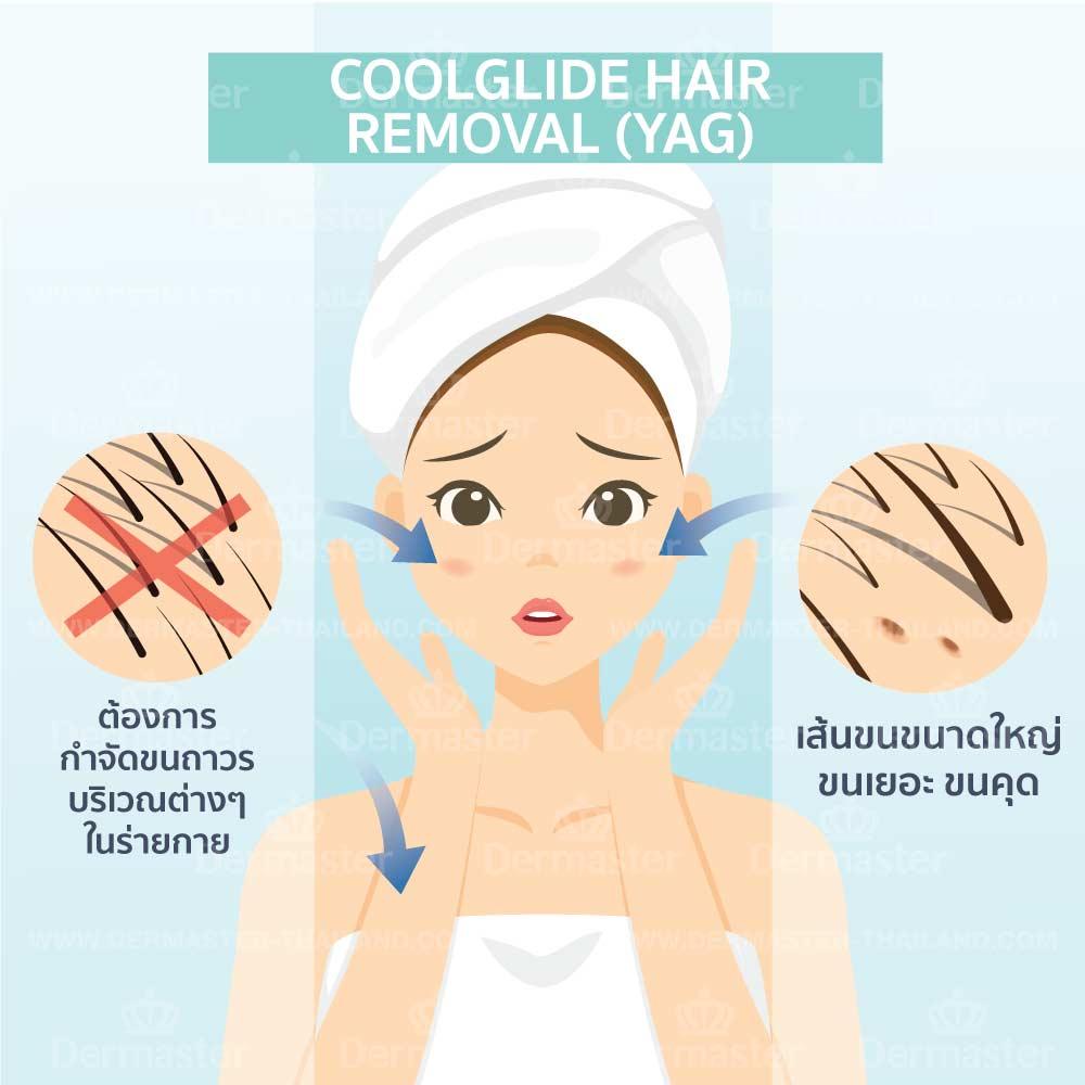 กำจัดขนถาวร Coolglide Hair-removal (YAG) 6