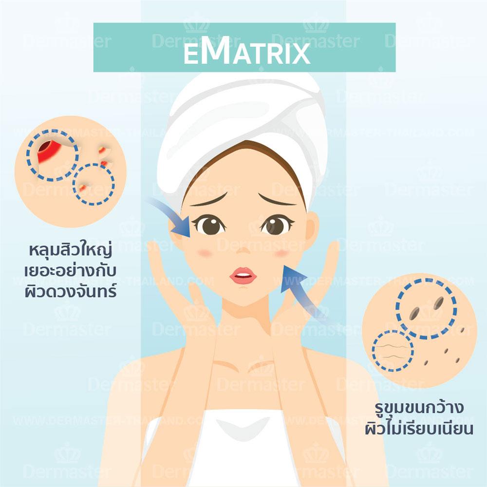 รักษาหลุมสิว (eMatrix) 6