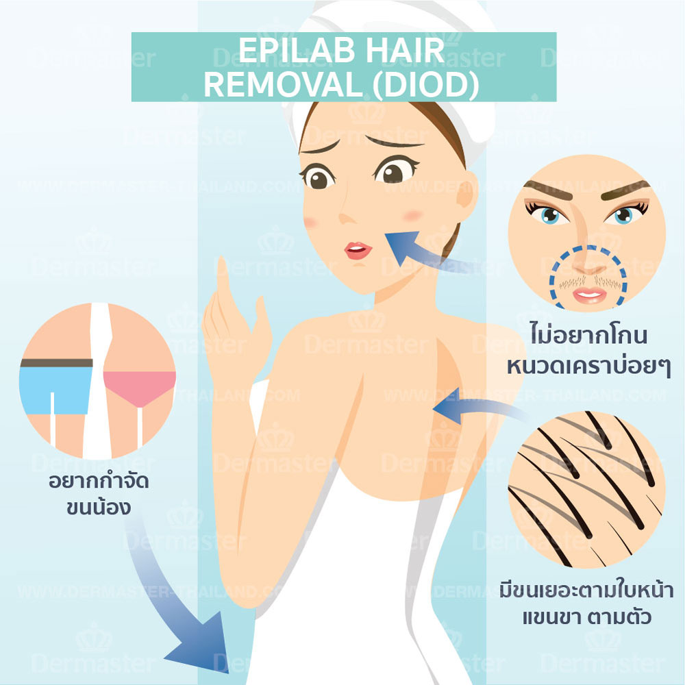 กำจัดขน Epilab Hair-removal (Diod) 6