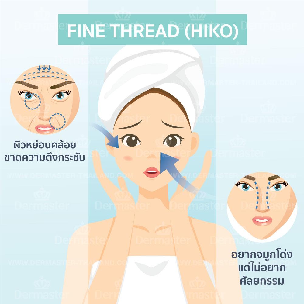 Fine Thread (HIKO) 6