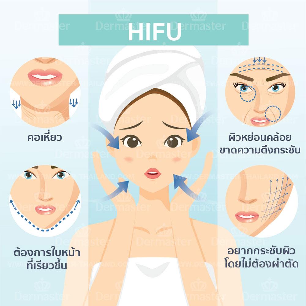 Hifu 10