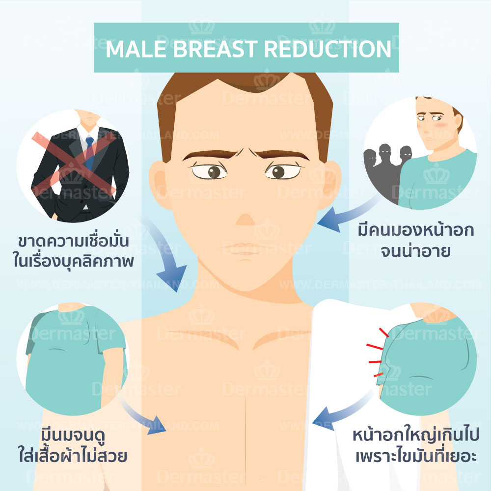 problem-male-breast-reduction