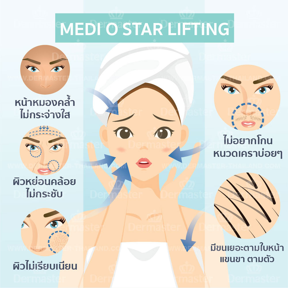problem-medi-o-star-lifting