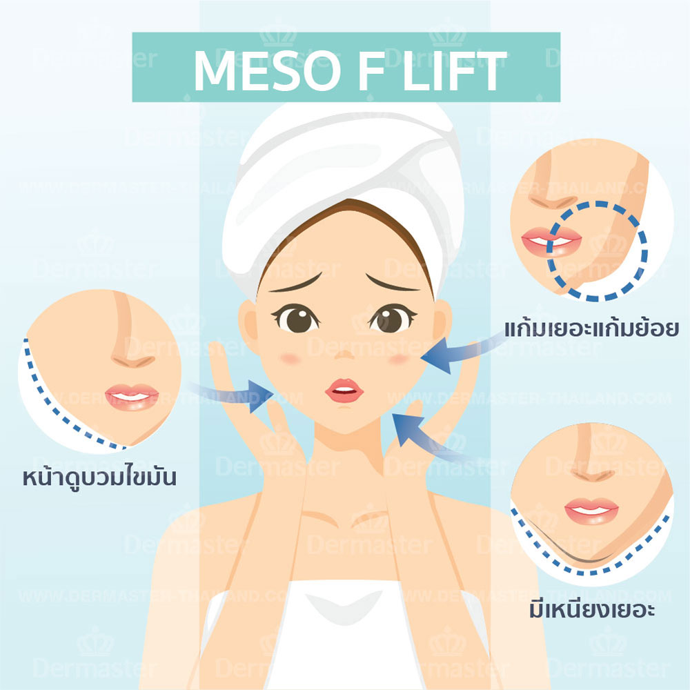เมโส เอฟ ลิฟ (Meso F Lift) 6
