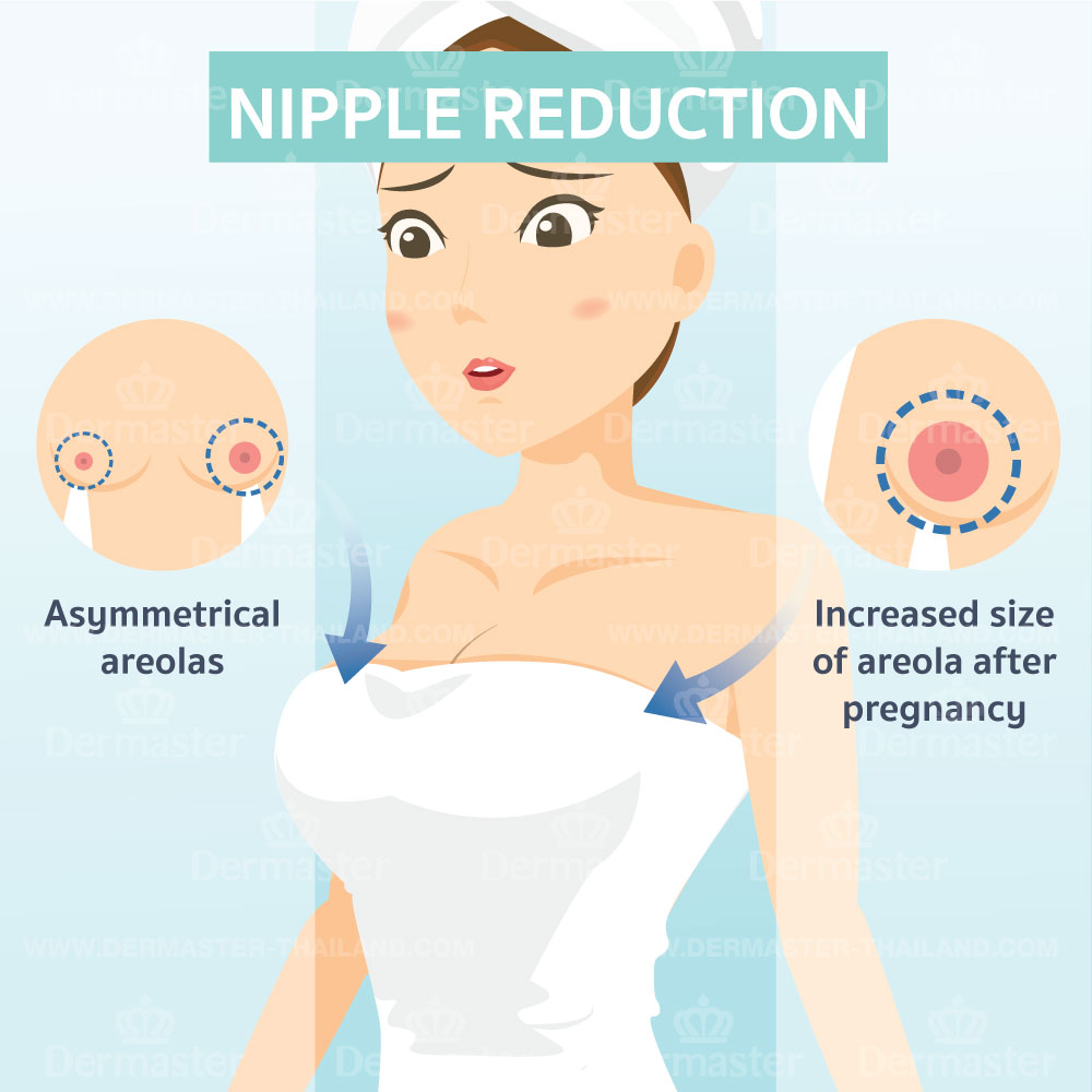 Nipple Reduction 6