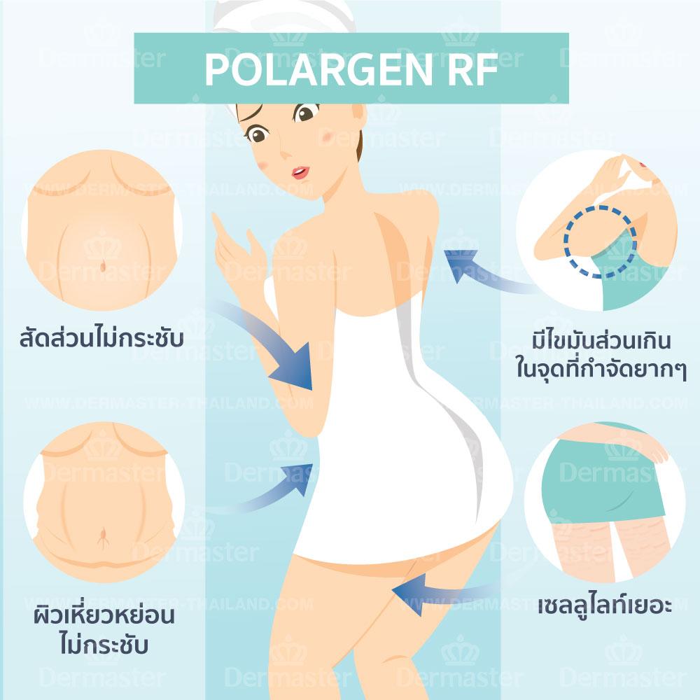 โพลาร์เจน อาร์เอฟ (Polargen RF) 6