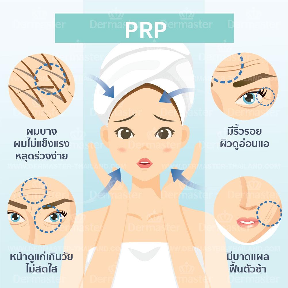 PRP 6