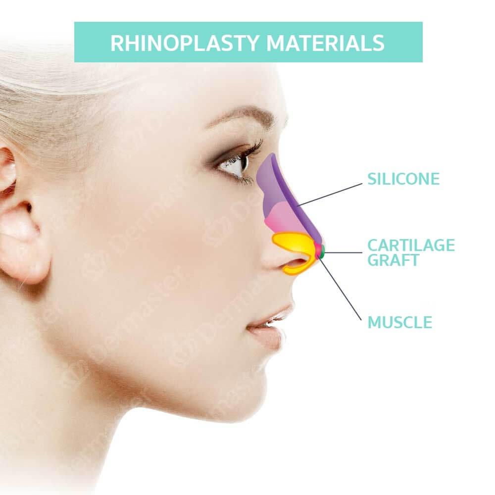 problem-rhinoplasty-en04