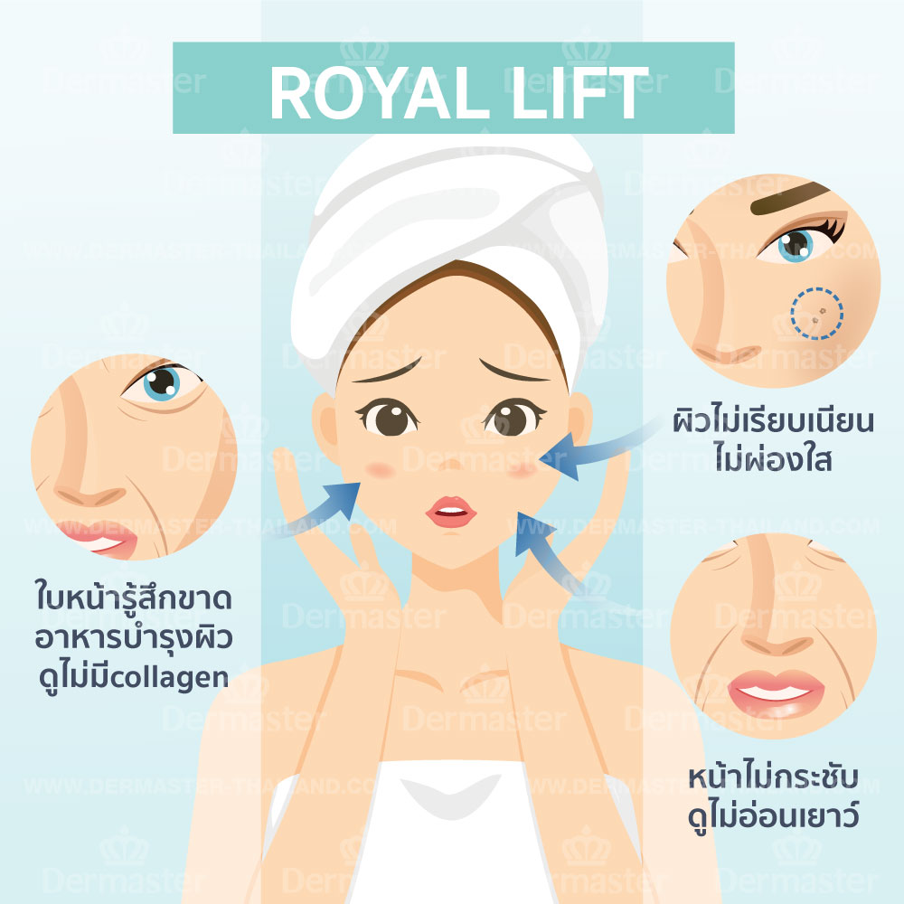 Royal Lift 6
