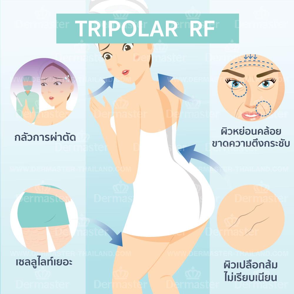 Tripolar射频紧肤 6