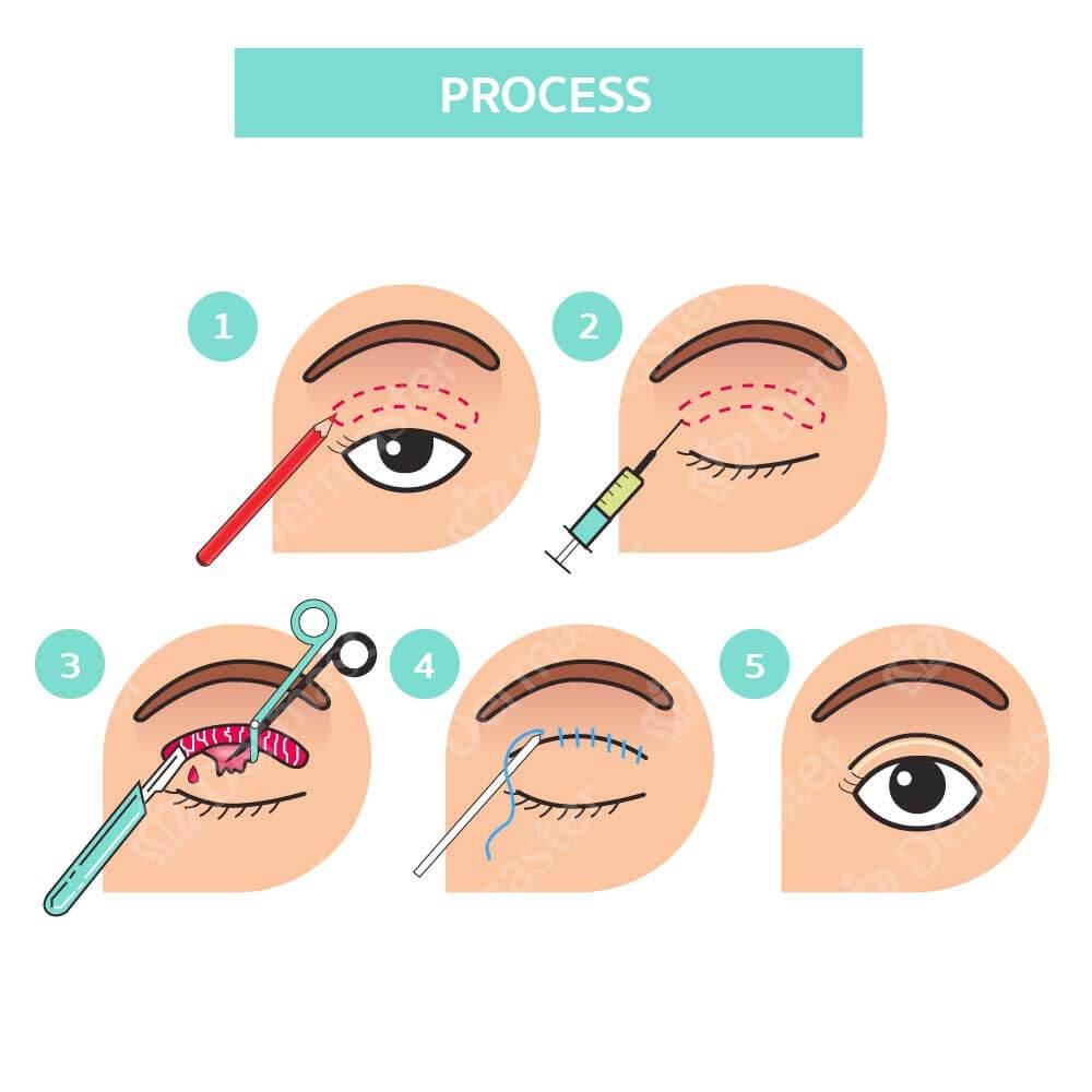 problem-upper-eyelid-surgery-en