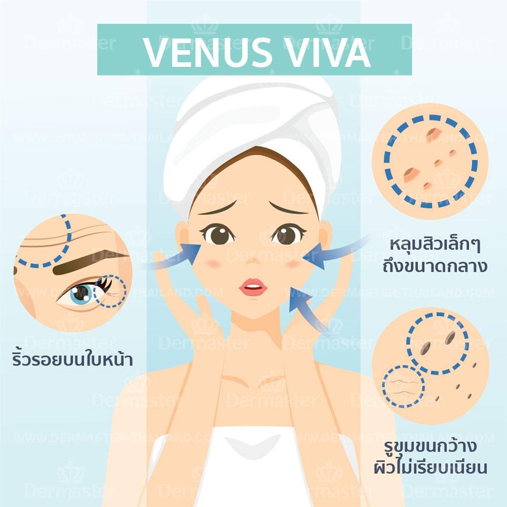 ลดหลุมสิวและกระชับรูขุมขน (Venus Viva) 6