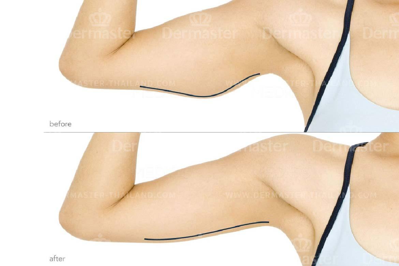 service-dermaster-brachioplasty-1