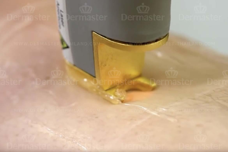กำจัดขน Coolglide Hair-removal (YAG) 2