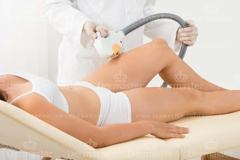 กำจัดขน Coolglide Hair-removal (YAG) 4