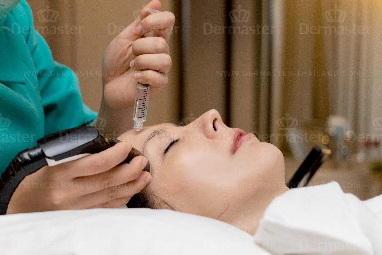 眼周护理疗程 2