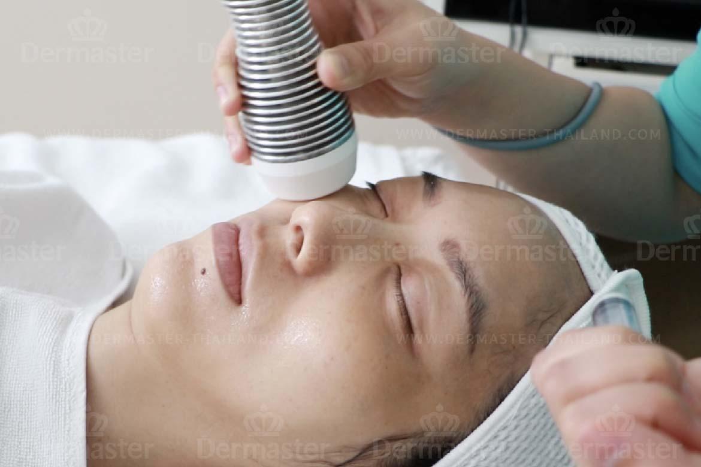 眼周护理疗程 4