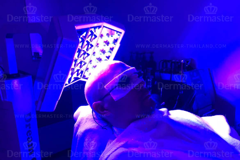 service-dermaster-hair-reform-5