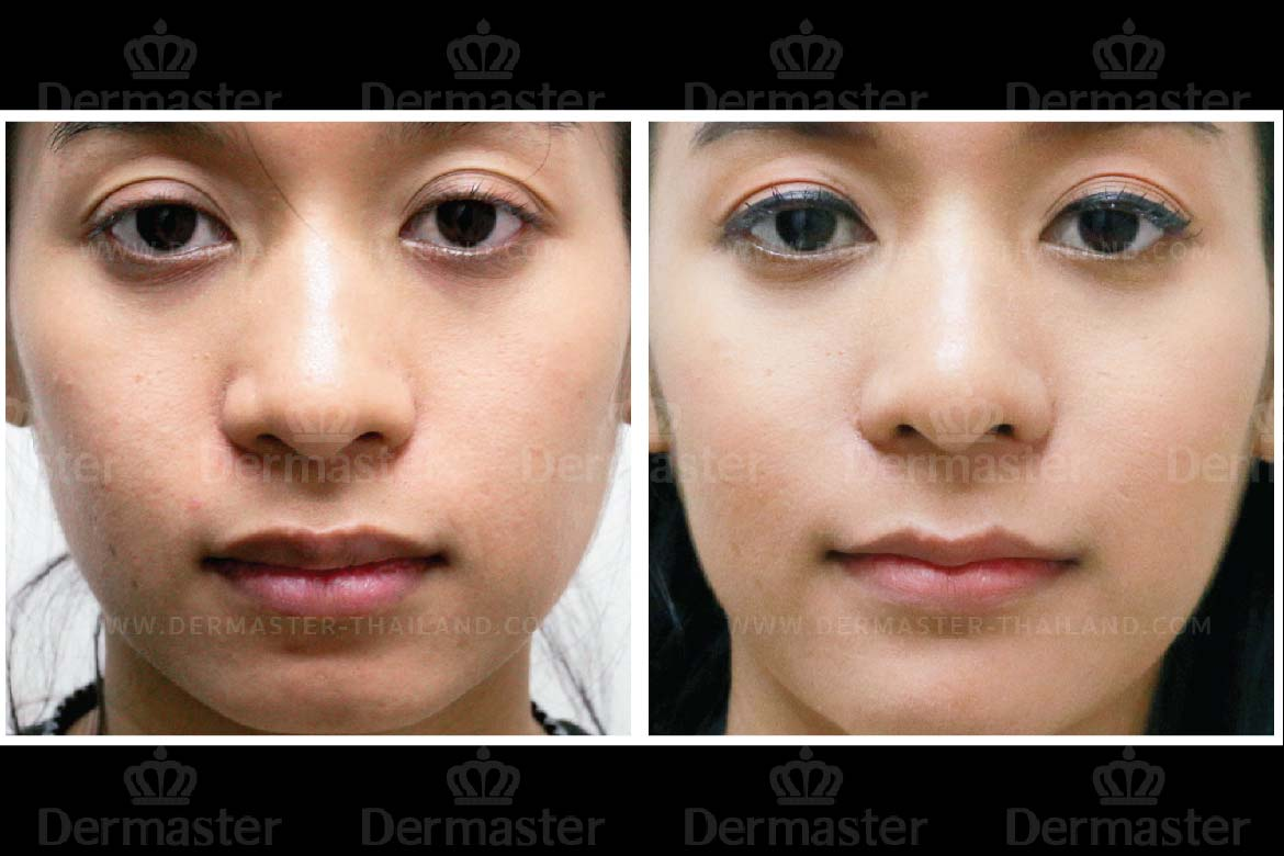 Top Five Thailand Lip Injections - Circus