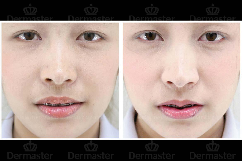 service-dermaster-lips-6